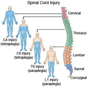 a photo is shown with a spinal column and lines to images with corresponding function levels according to an injury at different levels of the spinal cord