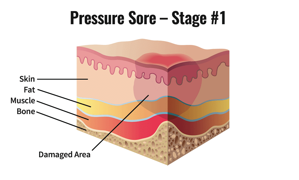 image shown is the levels of a pressure sore and what the body looks like in a diagram for a stage 1 sore